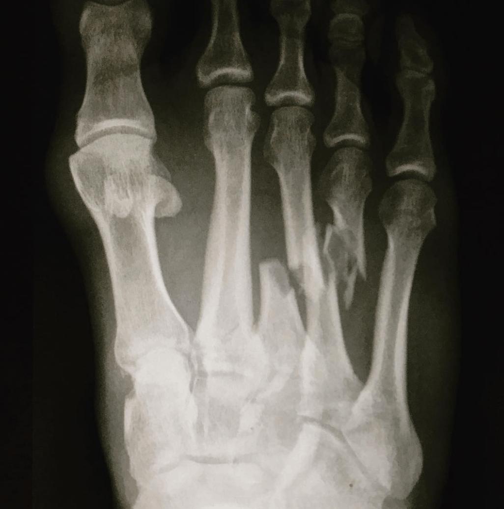 lesion pie
